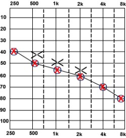 Sensorineural Hearing Loss Graph